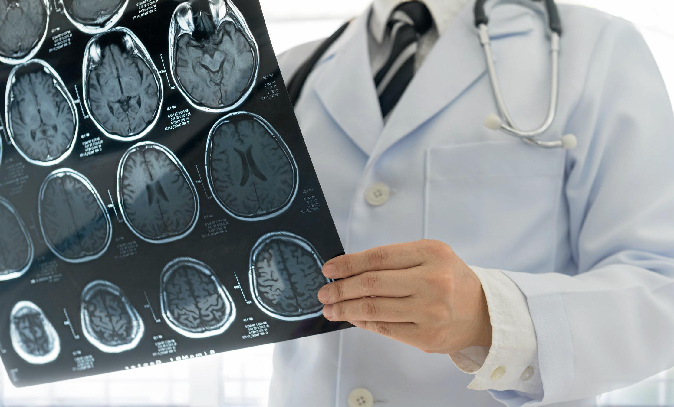 Rham Neurologia Matera
